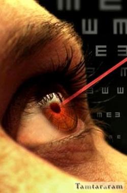 Лазерная терапия для глаз