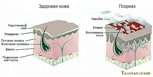 Предотвращение псориаза